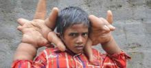 Unrevealed Mysteries India - A Boy from India Astounds with his Unusual Hands