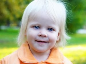 Lesser Known Facts about Albinism