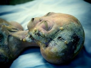 Autopsy of Extraterrestrial Admitted to be Real