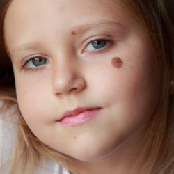 Birthmarks are Related to a Past Life