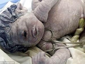 Newborn with a Single Eye Proves That Cyclopes Did Exist