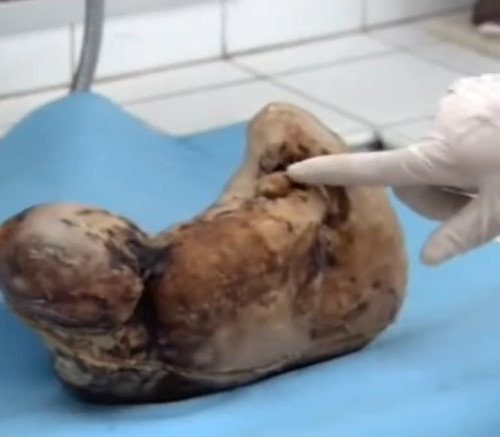 Old Chinese Woman Gives Birth to Stone Baby