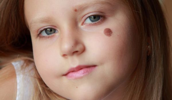 What Do Birthmarks Mean?